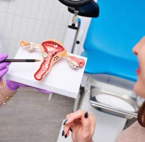 Endometriose: A doença silenciosa